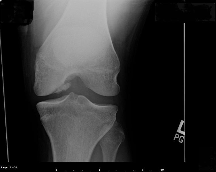 Osteoarthritis:  Part I (1/2)
